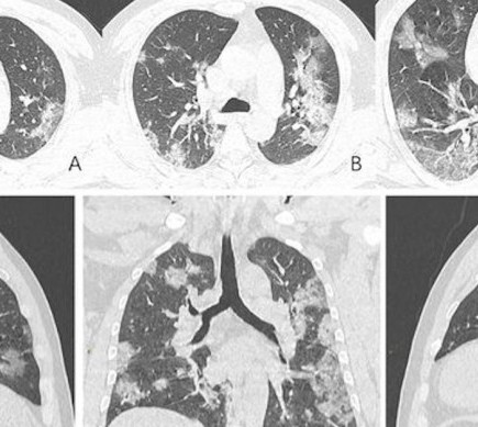 covid-19-lungs_resize_md